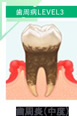 歯周炎(中度)
